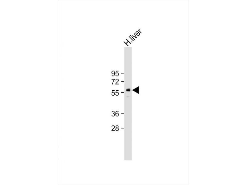 Western Blotting (WB) image for anti-Peroxisome Proliferator-Activated Receptor gamma (PPARG) (AA 1-30), (N-Term) antibody (ABIN652044)