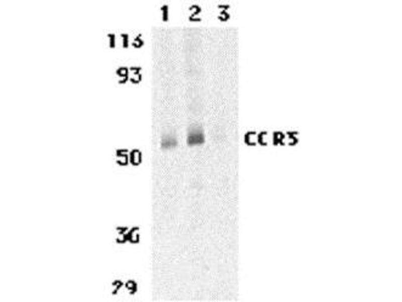 Western Blotting (WB) image for anti-CCR3 antibody (Chemokine (C-C Motif) Receptor 3) (C-Term) (ABIN499597)
