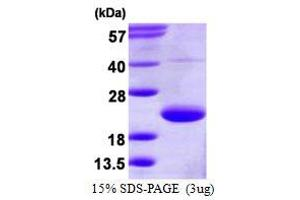 Image no. 1 for Trafficking Protein Particle Complex 3 (TRAPPC3) protein (His tag) (ABIN1098588)