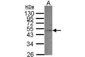 Image no. 1 for anti-Acyl-CoA Dehydrogenase, C-2 To C-3 Short Chain (Acads) (N-Term) antibody (ABIN2854770)