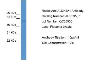 Image no. 2 for anti-Aldehyde Dehydrogenase 5 Family, Member A1 (ALDH5A1) (Middle Region) antibody (ABIN2788128)