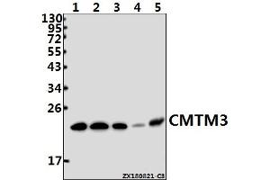Image no. 1 for anti-CKLF-Like MARVEL Transmembrane Domain Containing 3 (CMTM3) (AA 67-127) antibody (ABIN6713150)