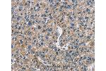 Immunohistochemistry (IHC) image for anti-FLT3 antibody (Fms-Related tyrosine Kinase 3) (ABIN2429279)