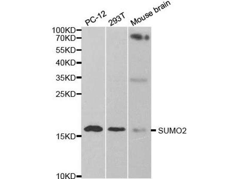 Image no. 1 for anti-SMT3 Suppressor of Mif Two 3 Homolog 2 (S. Cerevisiae) (SUMO2) antibody (ABIN6569286)