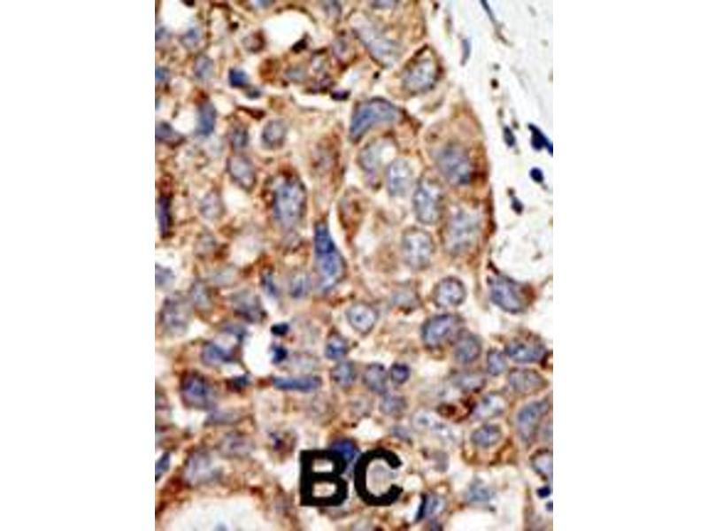 Immunohistochemistry (IHC) image for anti-PIASy1 (PIASy1) (AA 471-499), (C-Term) antibody (ABIN388062)