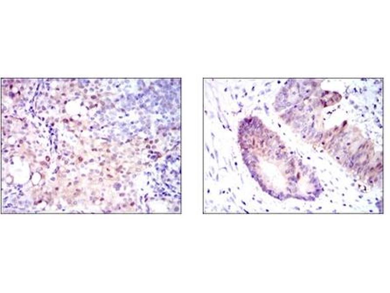 Immunohistochemistry (IHC) image for anti-Argininosuccinate Synthase 1 (ASS1) antibody (ABIN1105455)