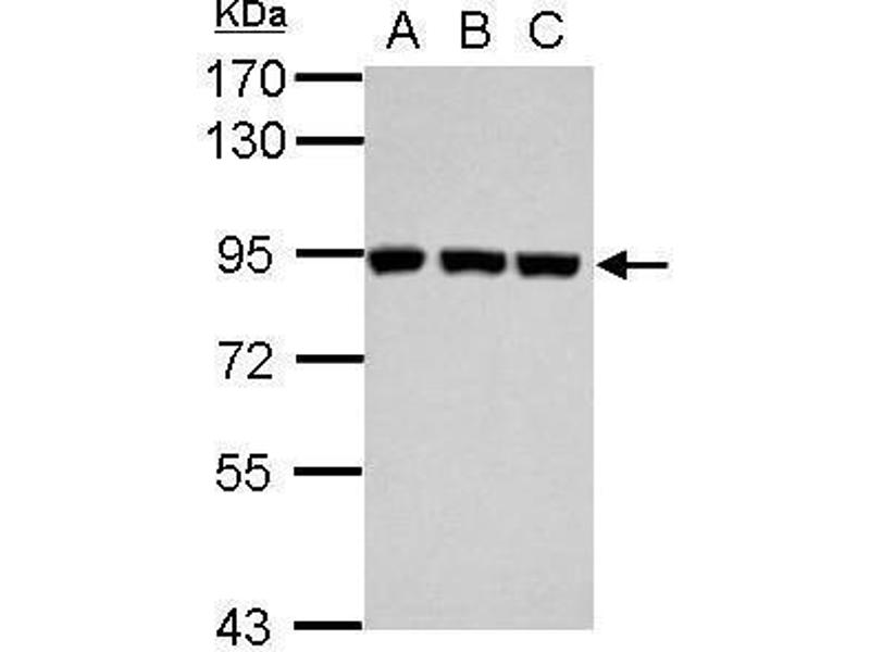 Western Blotting (WB) image for anti-PLG antibody (Plasminogen) (Center) (ABIN2855505)