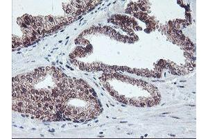 Image no. 1 for anti-Protein Phosphatase 1, Regulatory (Inhibitor) Subunit 15A (PPP1R15A) antibody (ABIN1498364)