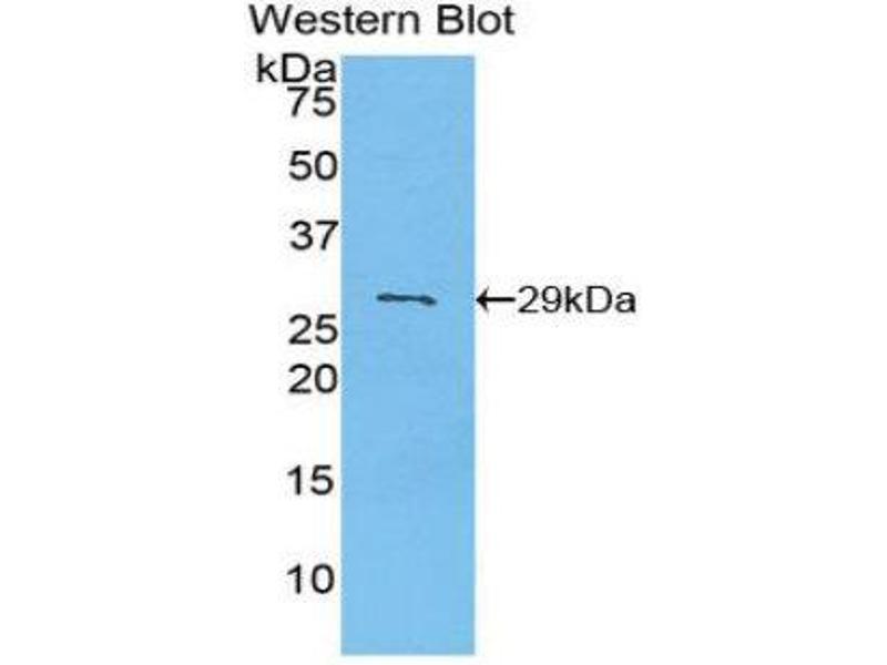Western Blotting (WB) image for anti-Pyruvate Dehydrogenase Kinase, Isozyme 2 (PDK2) (AA 155-379) antibody (ABIN1860173)