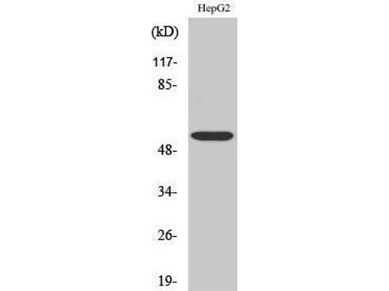 Western Blotting (WB) image for anti-Aldehyde Dehydrogenase 1 Family, Member B1 (ALDH1B1) (Internal Region) antibody (ABIN3183245)