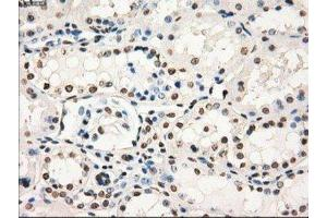 Immunohistochemistry (Paraffin-embedded Sections) (IHC (p)) image for anti-Guanylate Binding Protein 2, Interferon-Inducible (GBP2) antibody (ABIN4313701)