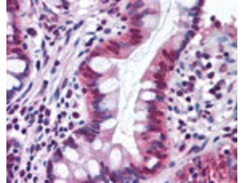 Immunohistochemistry (Paraffin-embedded Sections) (IHC (p)) image for anti-5-Hydroxytryptamine (serotonin) Receptor 2C (HTR2C) antibody (ABIN4355857)