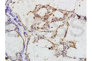 Image no. 2 for anti-Carcinoembryonic Antigen-Related Cell Adhesion Molecule 3 (CEACAM3) antibody (ABIN722931)