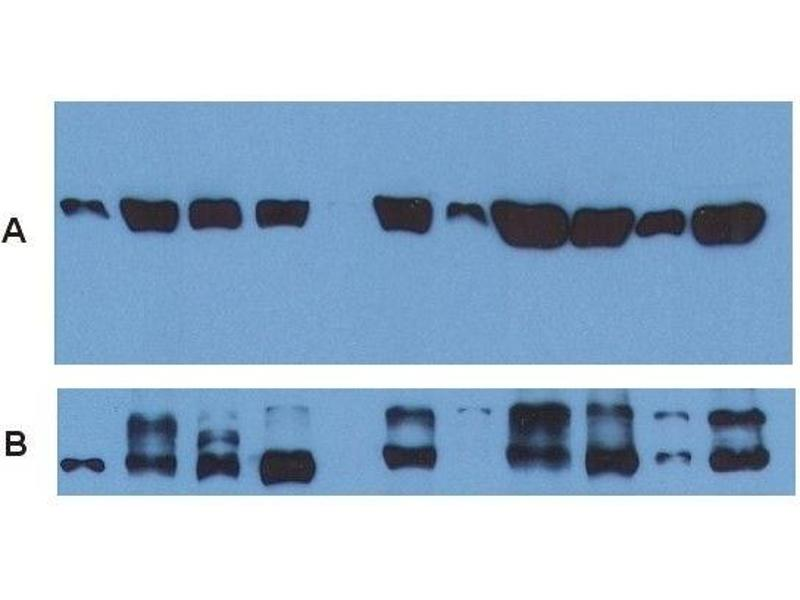Western Blotting (WB) image for anti-alpha Tubulin (TUBA1) antibody (FITC) (ABIN93892)