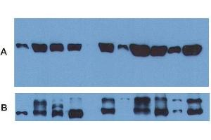 Western Blotting (WB) image for anti-Tubulin, alpha 1B (TUBA1B) (AA 65-97), (N-Term) antibody (FITC) (ABIN93892)