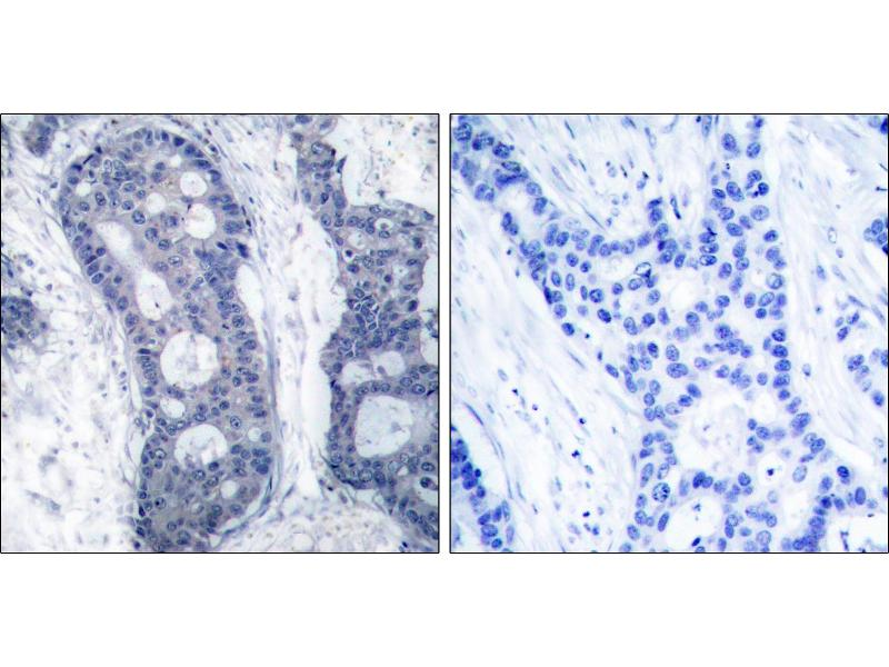 Image no. 2 for anti-Eukaryotic Translation Initiation Factor 4E (EIF4E) (Ser209) antibody (ABIN1576238)