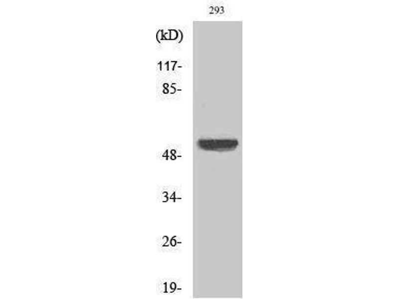 Western Blotting (WB) image for anti-X-Linked Inhibitor of Apoptosis (XIAP) (Ser144) antibody (ABIN3187502)