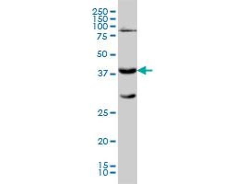 Western Blotting (WB) image for anti-Galactose-1-Phosphate Uridylyltransferase (GALT) (AA 1-379), (full length) antibody (ABIN560995)