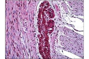 Image no. 2 for anti-Mitogen-Activated Protein Kinase Kinase Kinase 7 (MAP3K7) (Internal Region) antibody (ABIN784213)