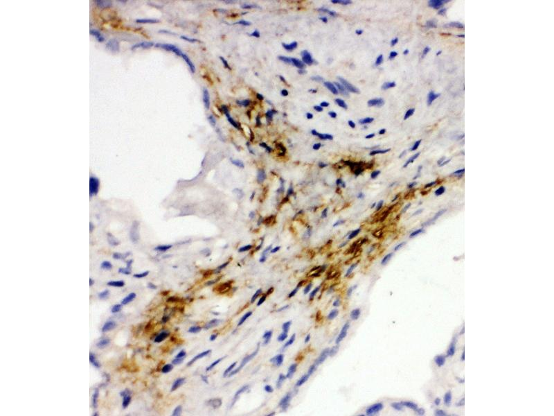 Immunohistochemistry (IHC) image for anti-Mucosal Vascular Addressin Cell Adhesion Molecule 1 (MADCAM1) (AA 173-190), (Middle Region) 抗体 (ABIN3044076)