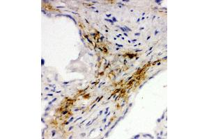 Image no. 2 for anti-Mucosal Vascular Addressin Cell Adhesion Molecule 1 (MADCAM1) (AA 173-190), (Middle Region) antibody (ABIN3044076)
