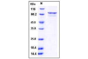 Image no. 1 for Death-Associated Protein Kinase 3 (DAPK3) (AA 1-454), (full length) (Active) protein (GST tag) (ABIN2003351)