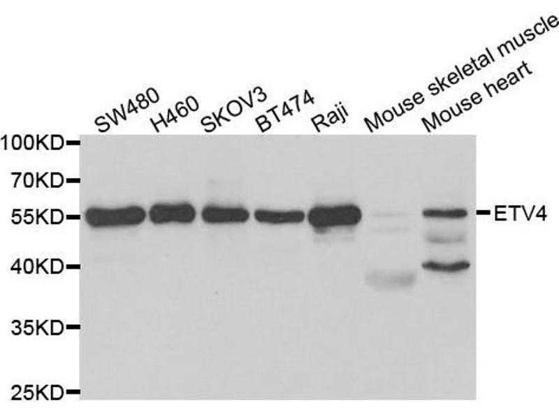Image no. 1 for anti-Ets Variant 4 (ETV4) antibody (ABIN2562493)