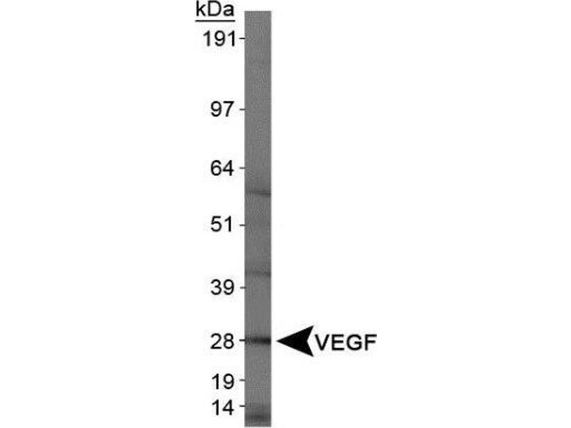 Western Blotting (WB) image for anti-VEGF antibody (Vascular Endothelial Growth Factor) (ABIN152088)