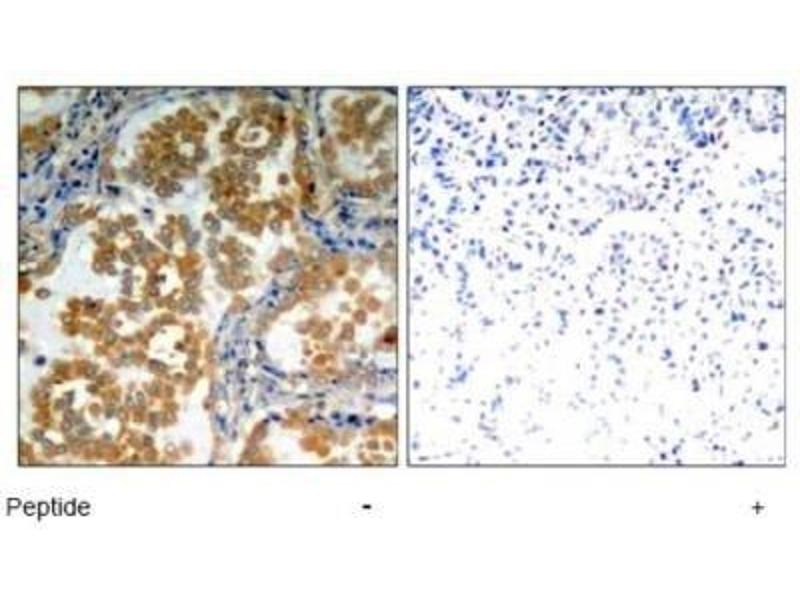 Immunohistochemistry (Paraffin-embedded Sections) (IHC (p)) image for anti-Protein Kinase C, zeta (PRKCZ) antibody (ABIN4345863)
