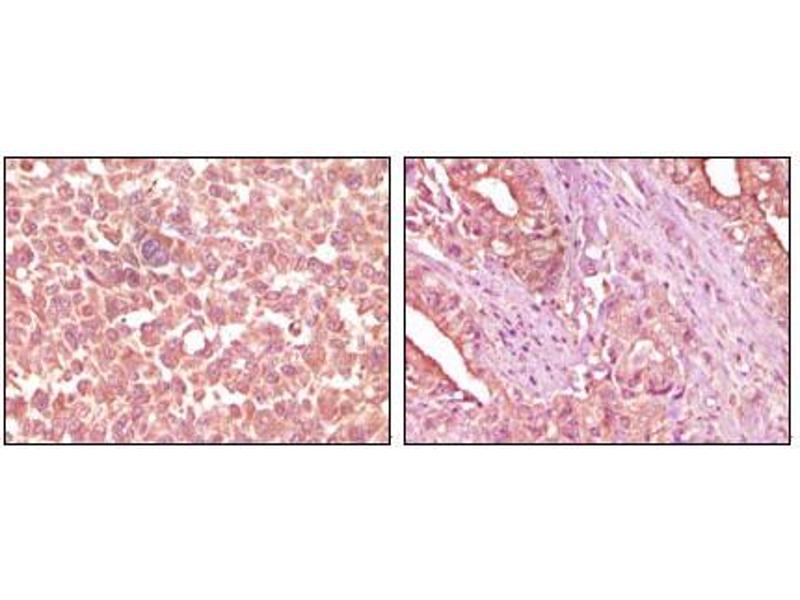 Image no. 2 for anti-EPH Receptor A2 (EPHA2) antibody (ABIN1576292)