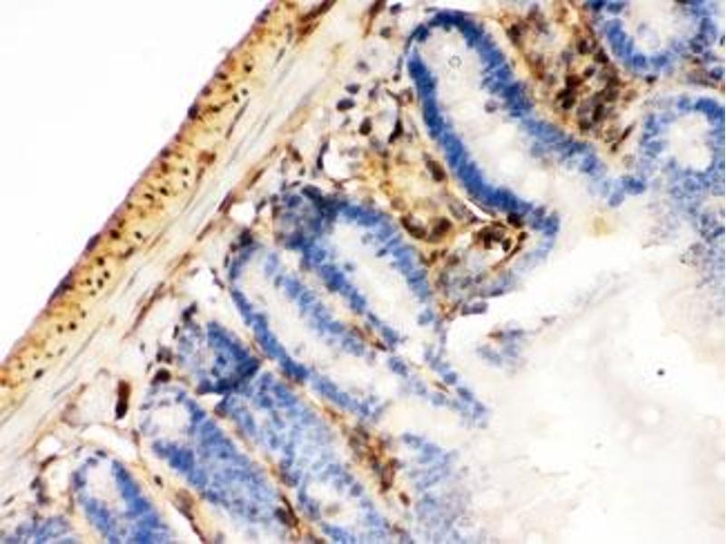 Image no. 2 for anti-Lectin, Galactoside-Binding, Soluble, 1 (LGALS1) (AA 2-135) antibody (ABIN4951130)