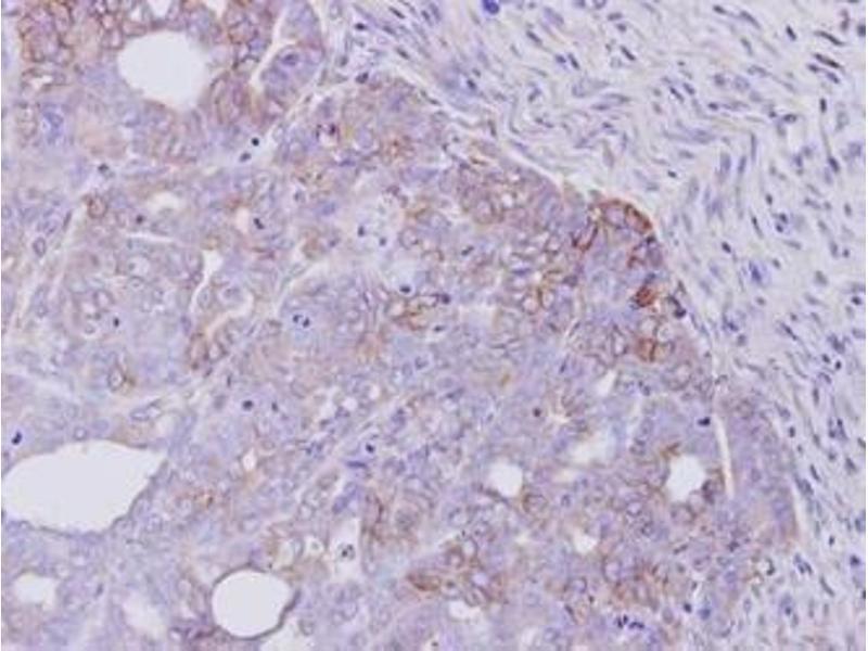 Immunohistochemistry (IHC) image for anti-V-Erb-A erythroblastic Leukemia Viral Oncogene Homolog 4 (Avian) (ERBB4) (C-Term) antibody (ABIN443062)