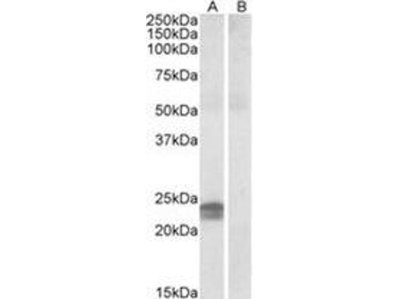 Western Blotting (WB) image for anti-High Mobility Group AT-Hook 1 (HMGA1) (Internal Region) antibody (ABIN615453)