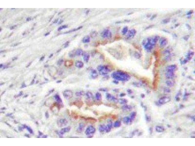 Immunohistochemistry (IHC) image for anti-Protein Kinase C, theta (PRKCQ) antibody (ABIN314754)