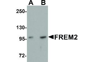 Image no. 1 for anti-Fras1 Related Extracellular Matrix Protein 2 (FREM2) (Internal Region) antibody (ABIN6655965)