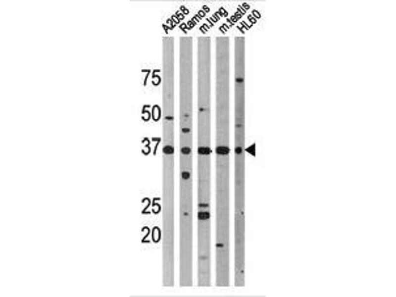 Western Blotting (WB) image for anti-p53 antibody (Tumor Protein P53) (pThr18) (ABIN389626)