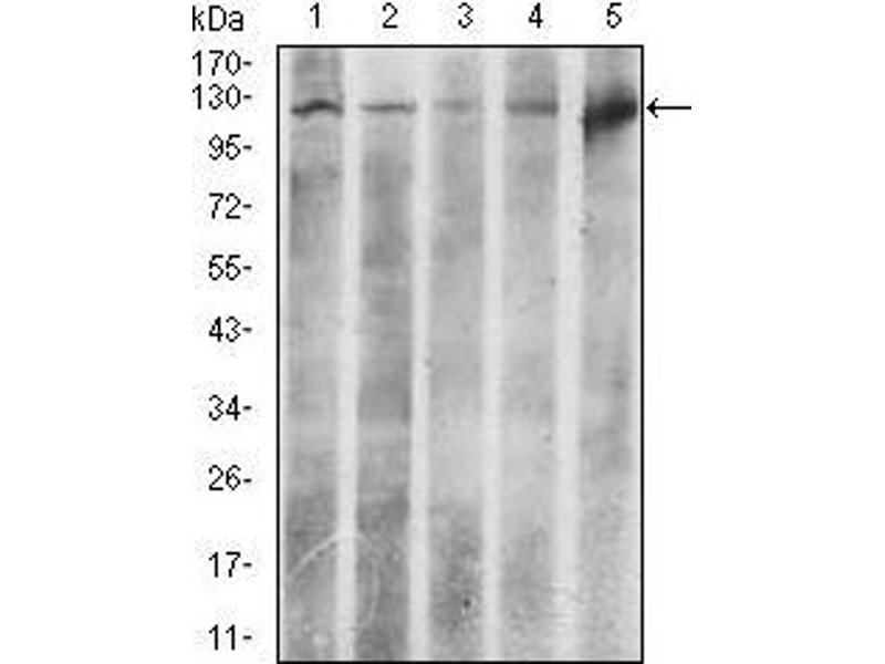 Western Blotting (WB) image for anti-ATP Citrate Lyase (ACLY) (AA 306-502) antibody (ABIN1098143)