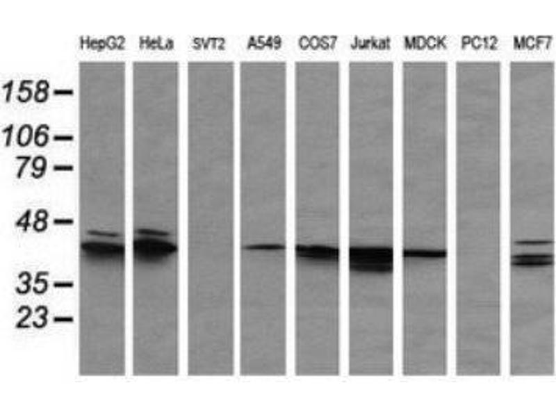 Western Blotting (WB) image for anti-Mitogen-Activated Protein Kinase 3 (MAPK3) antibody (ABIN4309406)