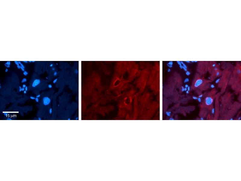 Immunohistochemistry (IHC) image for anti-Splicing Factor 1 (SF1) (Middle Region) antibody (ABIN2777969)