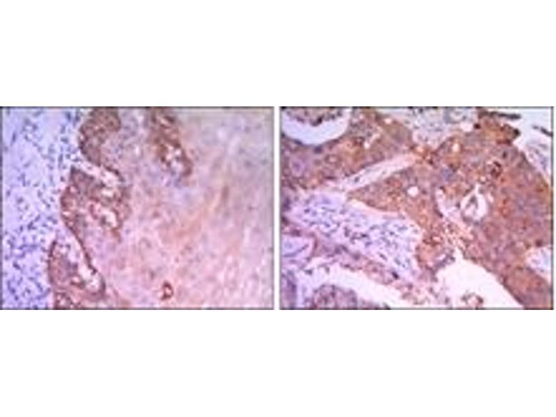 Immunohistochemistry (IHC) image for anti-RAB25, Member RAS Oncogene Family (RAB25) antibody (ABIN1108809)