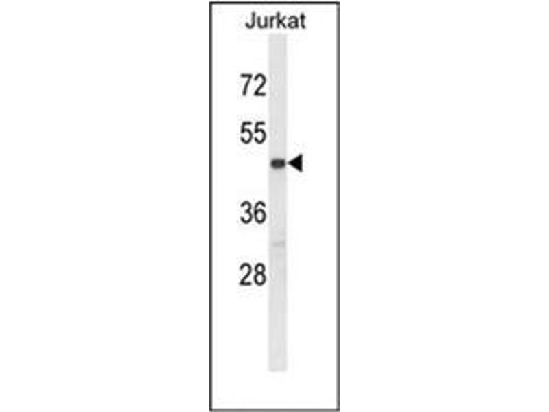 Western Blotting (WB) image for anti-PDK2 antibody (Pyruvate Dehydrogenase Kinase, Isozyme 2) (ABIN954072)