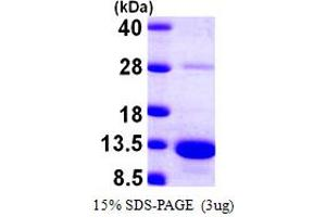 Image no. 1 for S100 Calcium Binding Protein A5 (S100A5) (AA 1-92) protein (His tag) (ABIN667887)