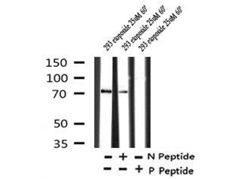 Image no. 3 for anti-WEE1 Homolog (S. Pombe) (WEE1) (pSer139) antibody (ABIN6269995)