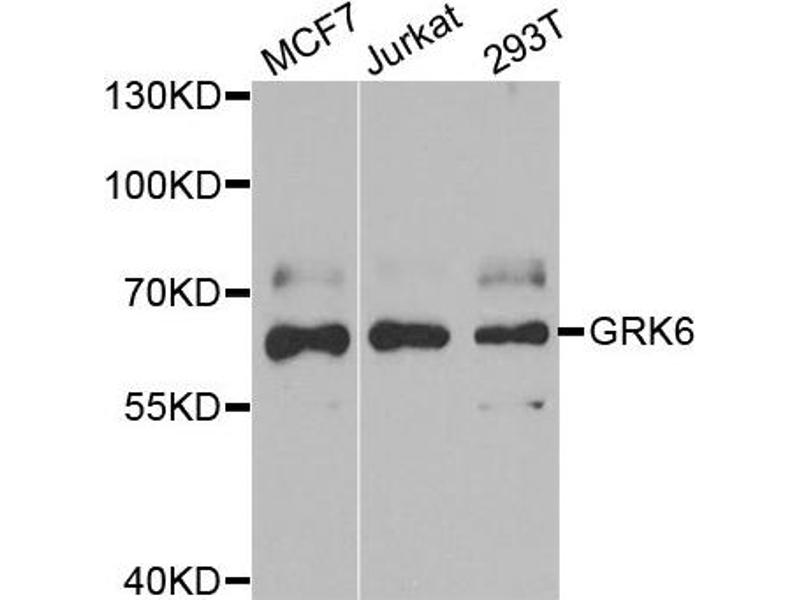 Image no. 1 for anti-G Protein-Coupled Receptor Kinase 6 (GRK6) antibody (ABIN2562945)