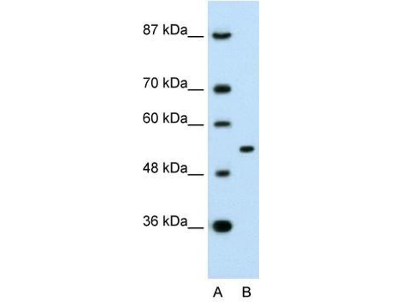 Western Blotting (WB) image for anti-Amyloid beta (A4) Precursor Protein-Binding, Family A, Member 1 (APBA1) (N-Term) antibody (ABIN926979)