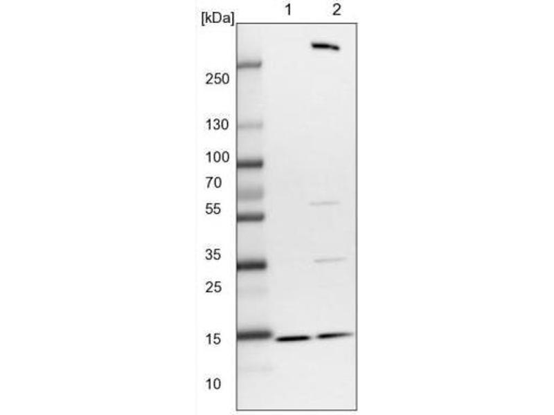 Western Blotting (WB) image for anti-Retinol Binding Protein 7, Cellular (RBP7) antibody (ABIN4349699)