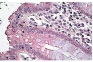 Immunohistochemistry (Paraffin-embedded Sections) (IHC (p)) image for anti-Solute Carrier Family 12 (Potassium-Chloride Transporter) Member 2 (SLC12A2) antibody (ABIN4339820)