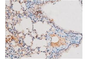 Image no. 6 for anti-Nuclear Factor-KB P65 (NFkBP65) (pThr435) antibody (ABIN6255688)