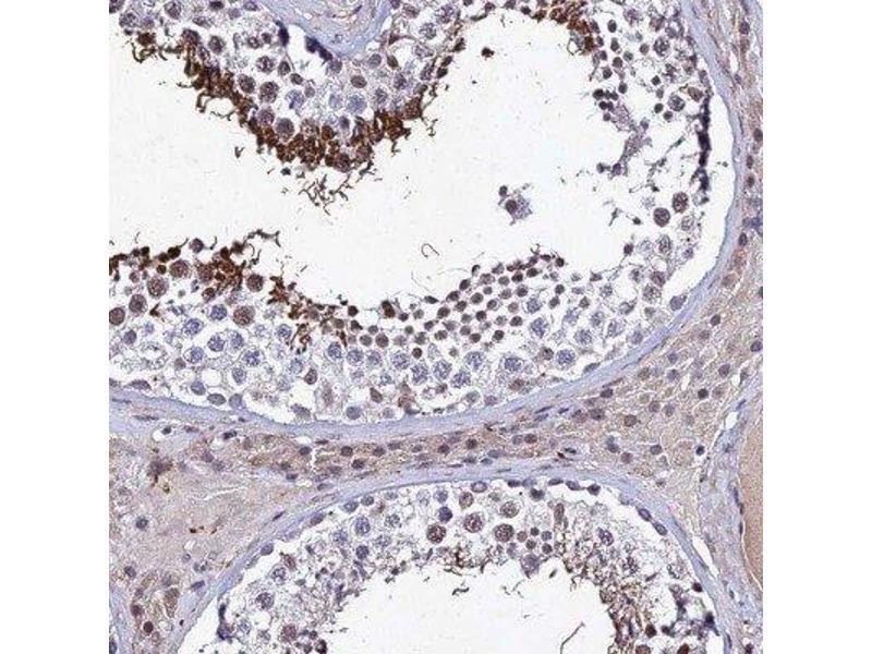 Immunohistochemistry (IHC) image for anti-Ribonucleoprotein, PTB-Binding 1 (RAVER1) 抗体 (ABIN4349465)