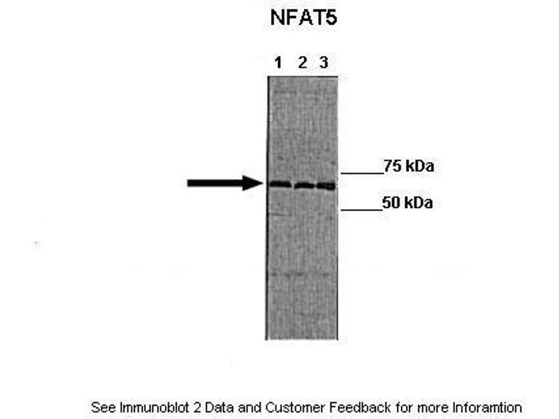Western Blotting (WB) image for anti-Nuclear Factor of Activated T-Cells 5, Tonicity-Responsive (NFAT5) (Middle Region) antibody (ABIN2780105)